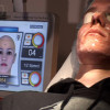 05_Aknetherapie-per-Laser