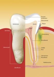 Parodontitis 1