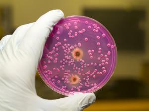Bakterienkulturen © ggw - Fotolia.com