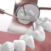Zähne bedürfen guter Pflege & gutem Essen © Jessica Schindler - Fotolia.com