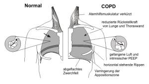Störung der Lungenfunktion durch COPD
