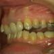 innovative Zahnschiene